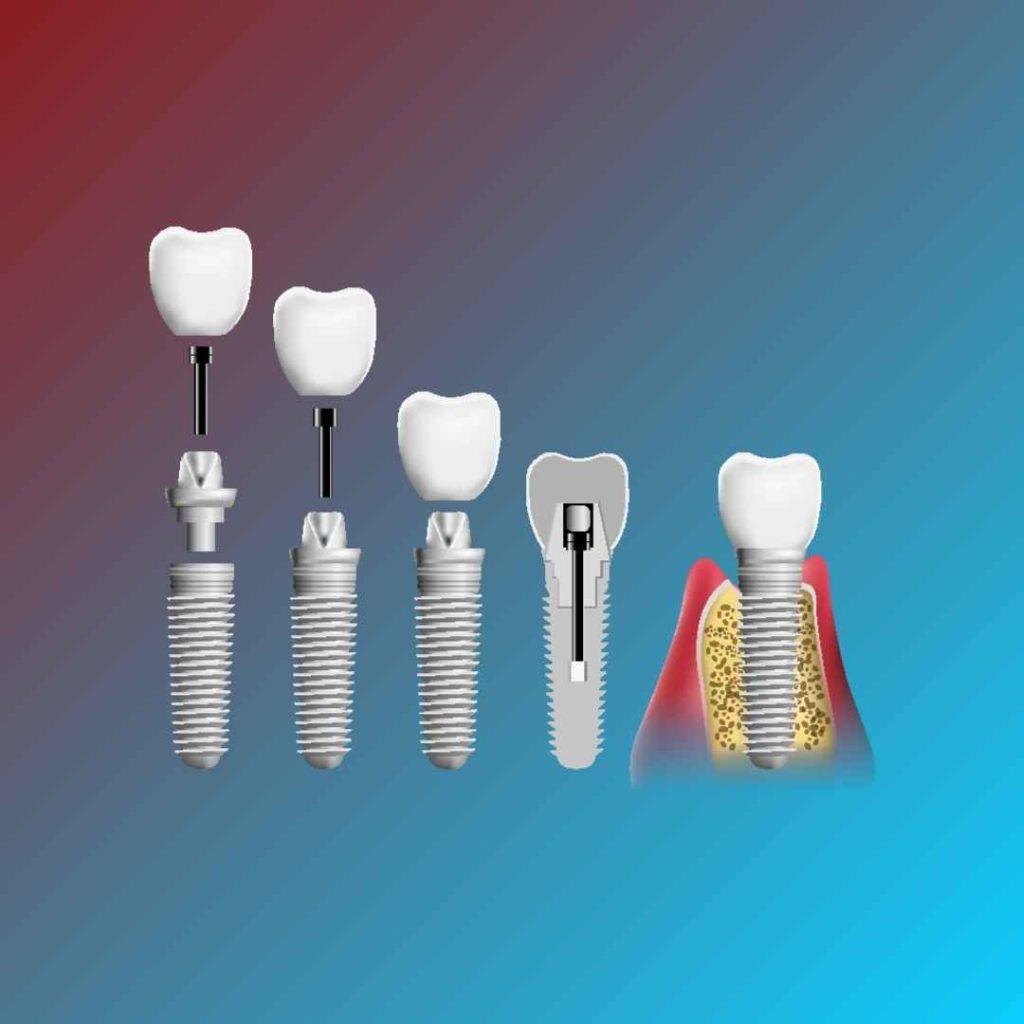 Implantologia Sassari